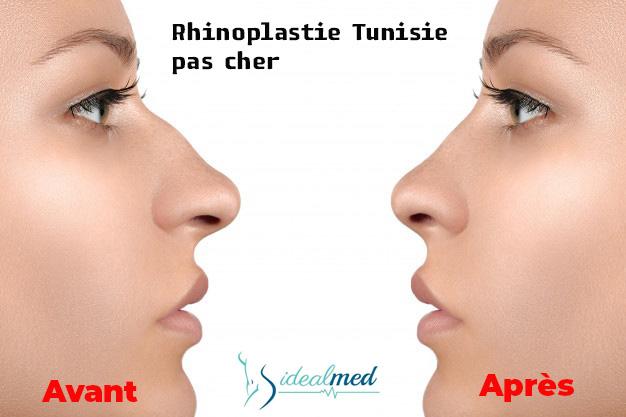Rhinoplastie Tunisie avant apres pas cher
