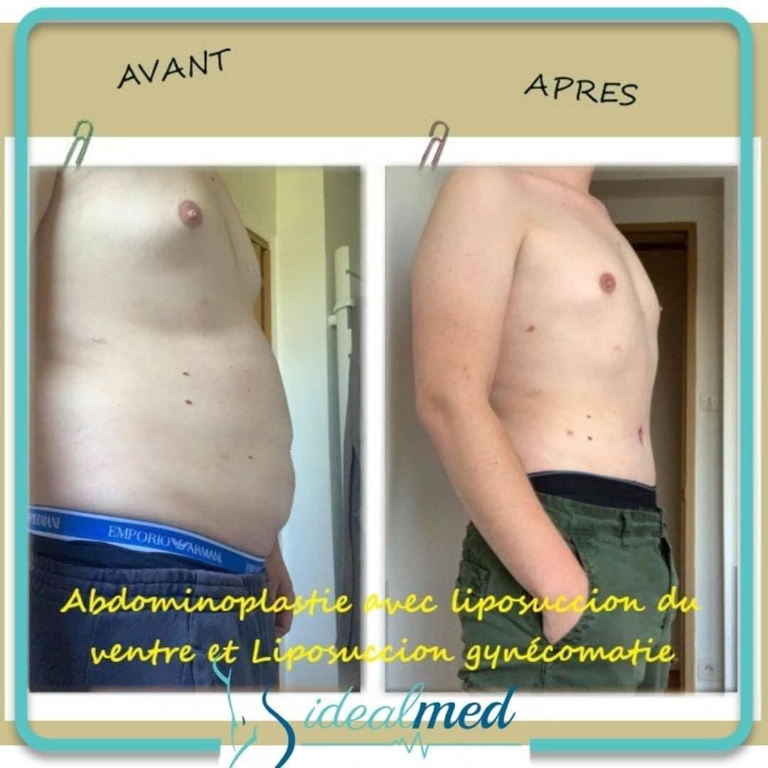 résultat abdominoplastie en Tunisie avant et après