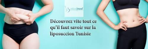 Découvrez vite tout ce qu'il faut savoir sur la liposuccion Tunisie