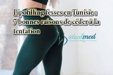 Lipofilling fesses en Tunisie : 7 bonnes raisons de céder à la tentation