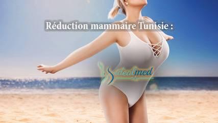 Reduction mammaire : décryptage de l'intervention pour diminuer le volume des seins