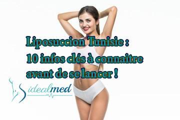 Liposuccion en Tunisie : 10 infos clés à connaitre avant de se lancer !